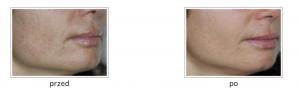 filorga przed i po