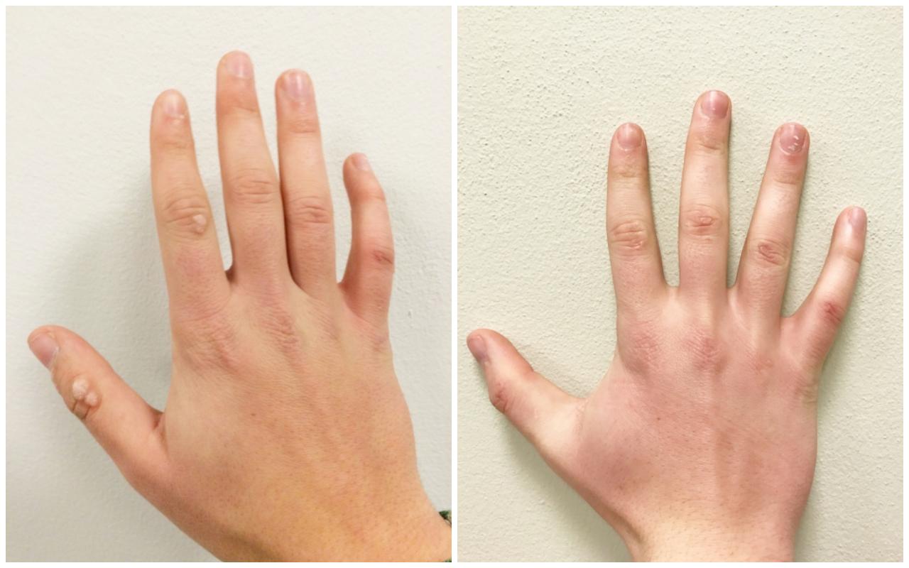 usuwanie zmian skórnych przed i po