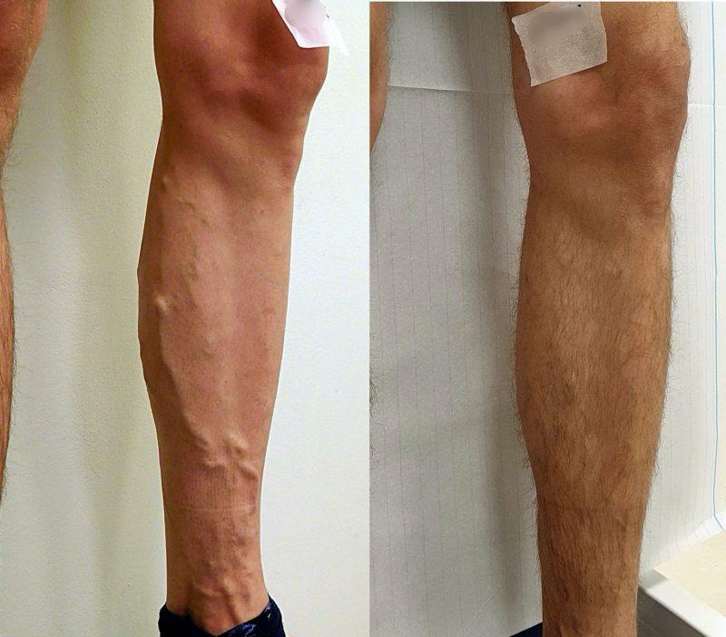 usuwanie-zylaka-noga