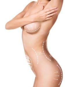 powiekszanie piersi tluszczem