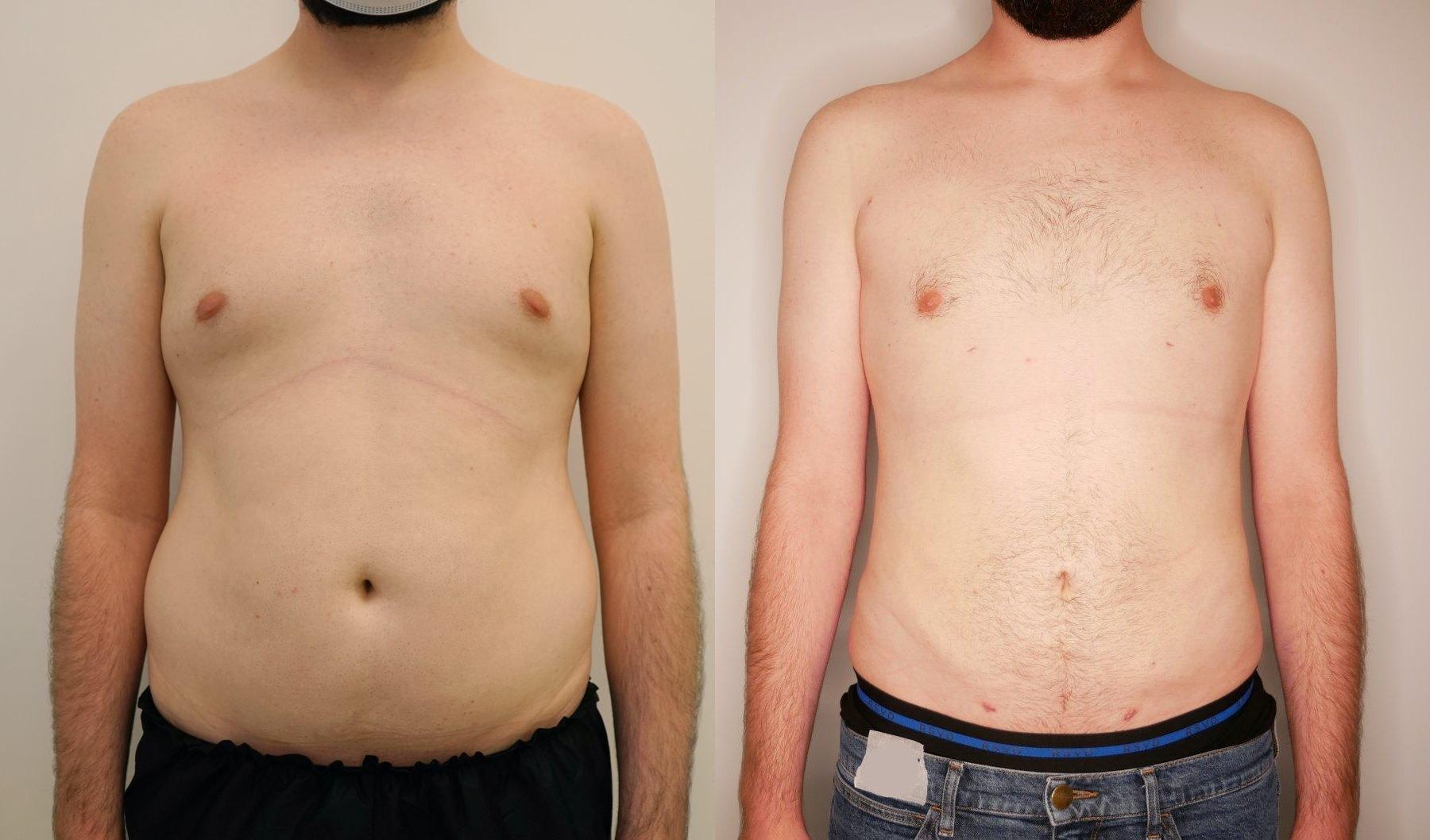 liposukcja-brzucha-meska-vaser