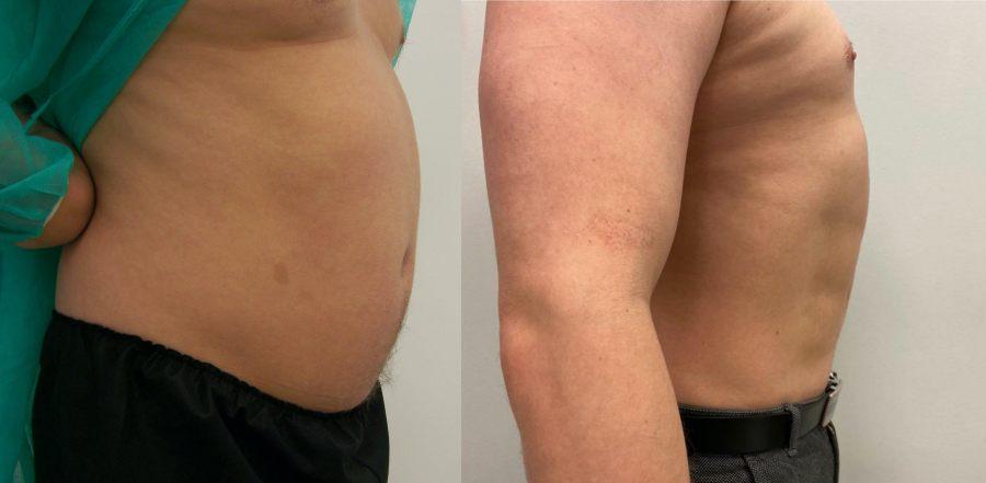 liposukcja-brzucha-mezczyzna-kaloryfer