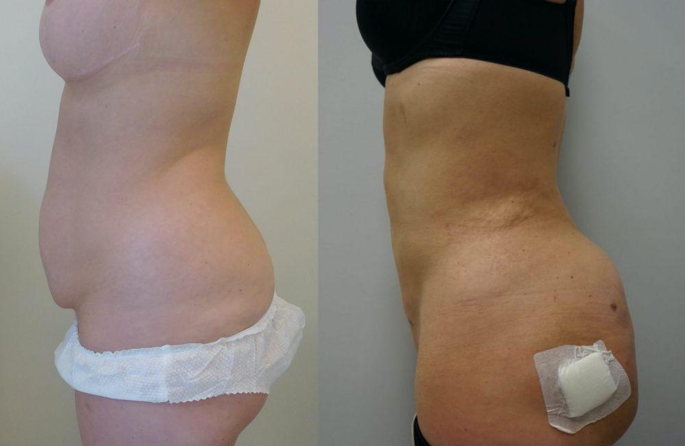 liposukcja-brzucha-przeszczep-tluszczu-posladki