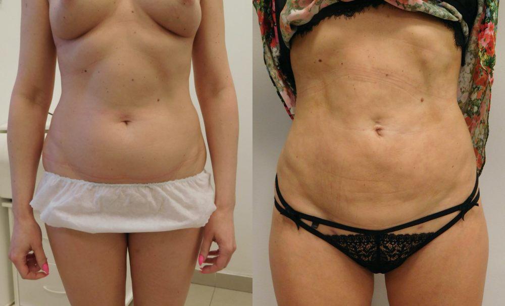 liposukcja-brzucha-vaserlipo