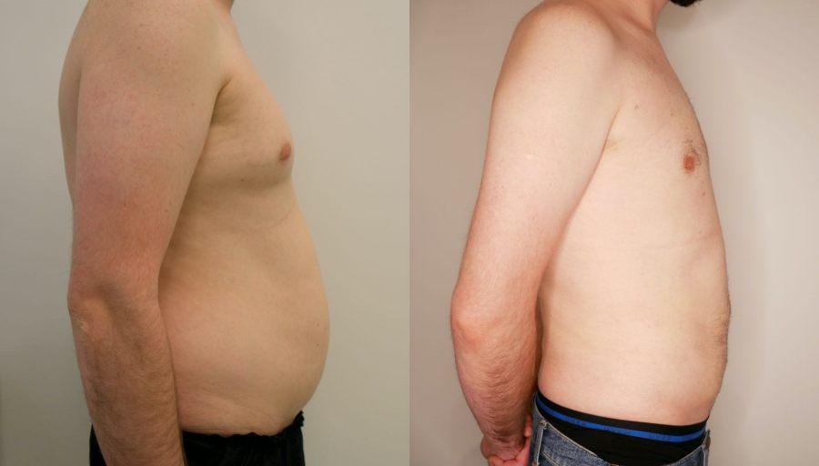 liposukcja-klatki-piersiowej-ginekomastia