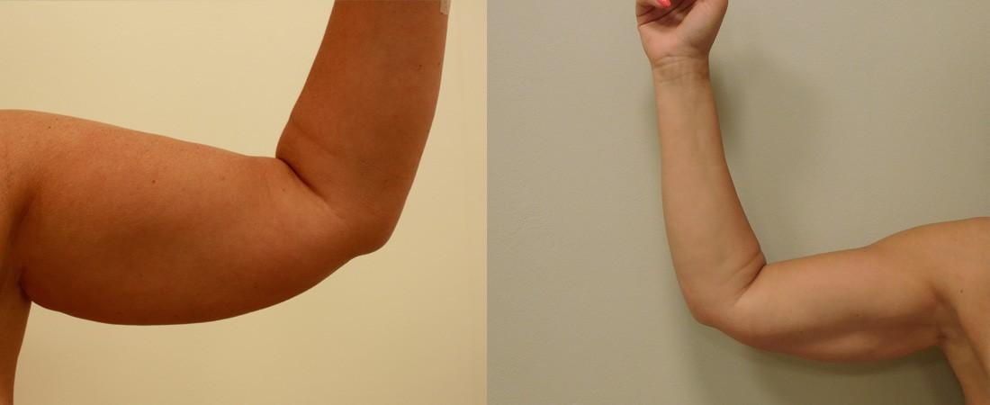liposukcja ramion zdjecie