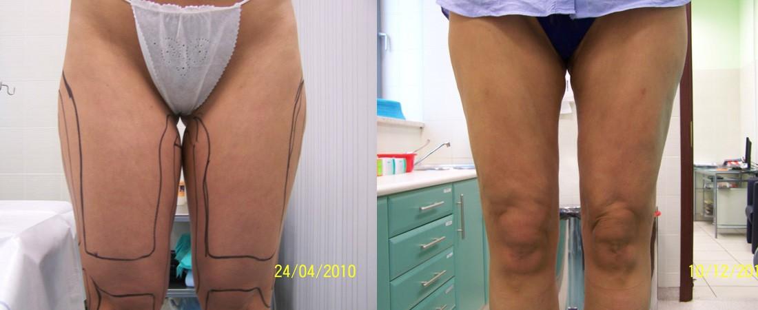 liposukcja zdjecia przed i po 1
