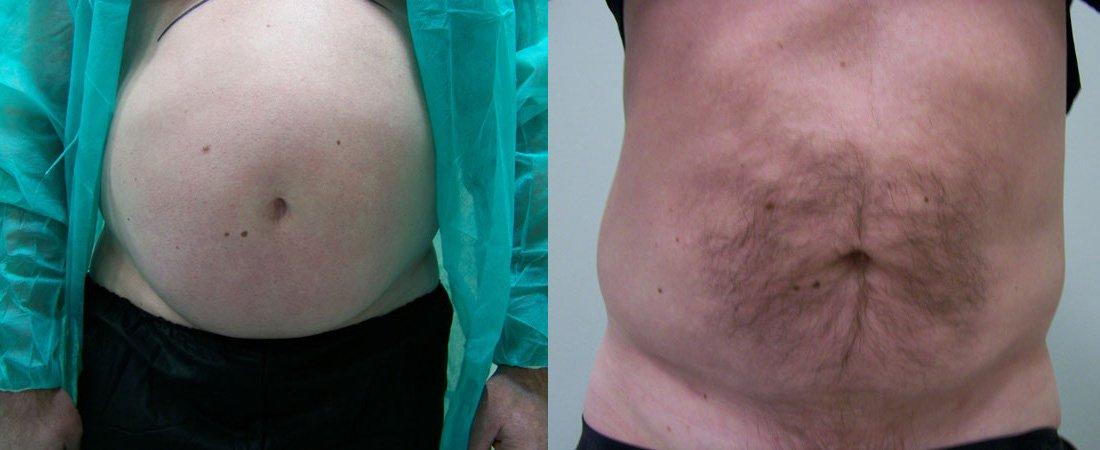 liposukcja zdjecia przed i po13