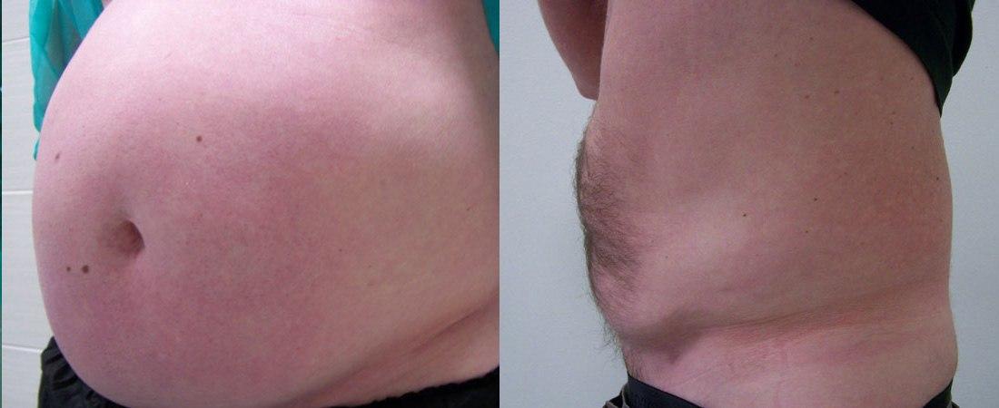 liposukcja zdjecia przed i po15
