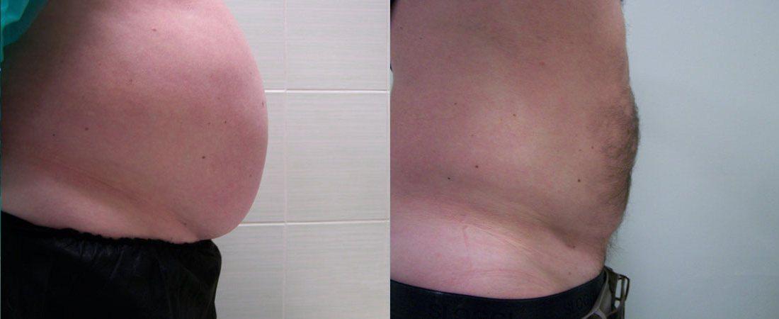 liposukcja zdjecia przed i po16