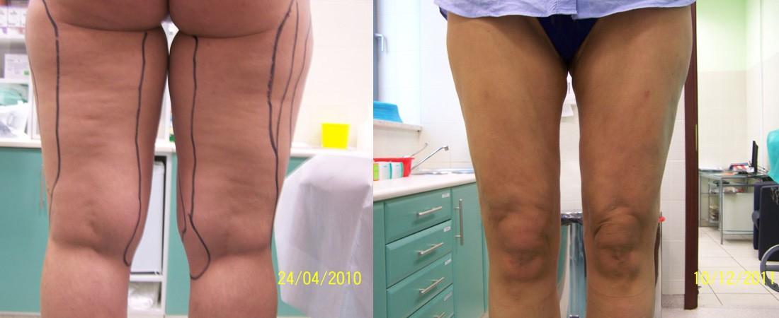 liposukcja zdjecia przed i po2