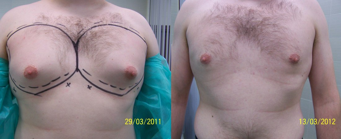 liposukcja zdjecia przed i po4