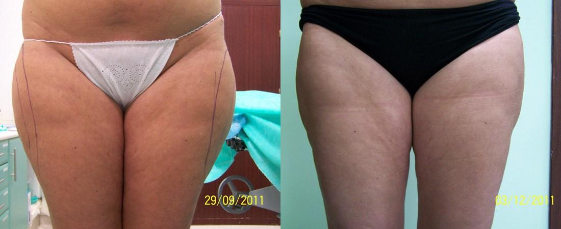 liposukcja zdjecia przed i po6
