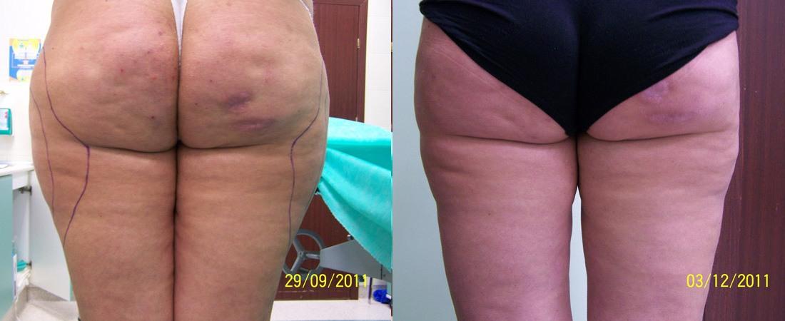 liposukcja zdjecia przed i po7