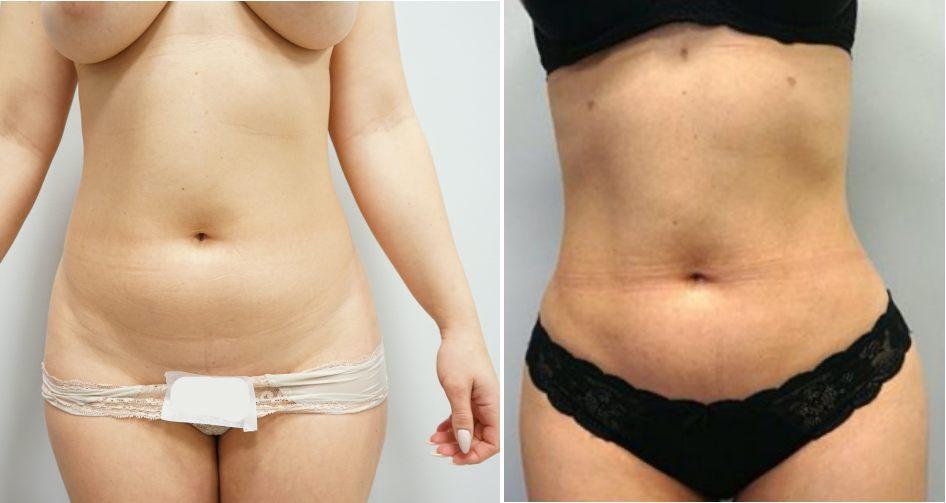 odessanie-tluszczu-brzuch-kobieta