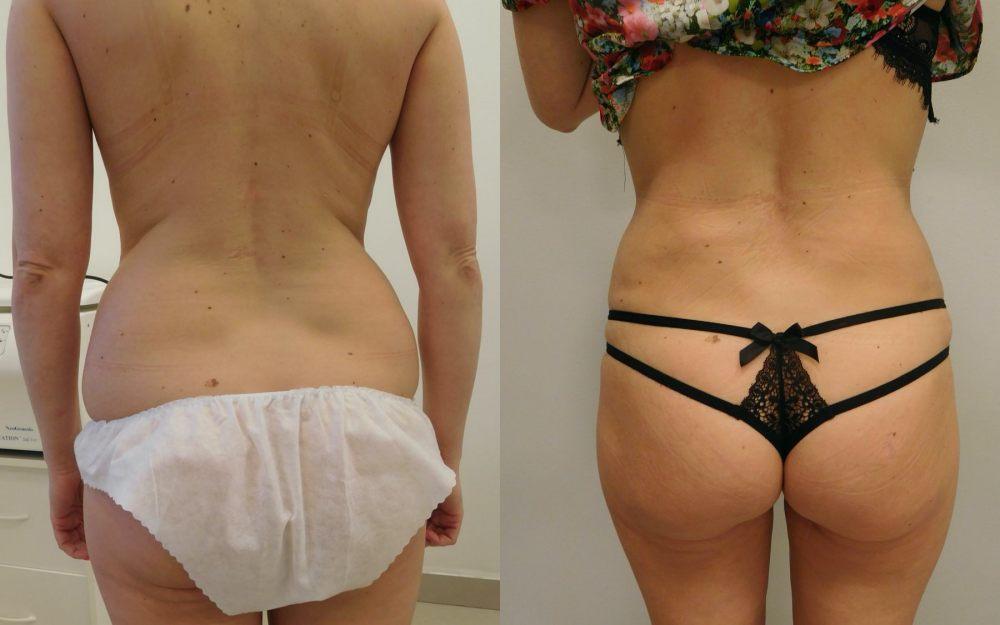 zdjecia-liposukcja-brzucha-vaserlipo