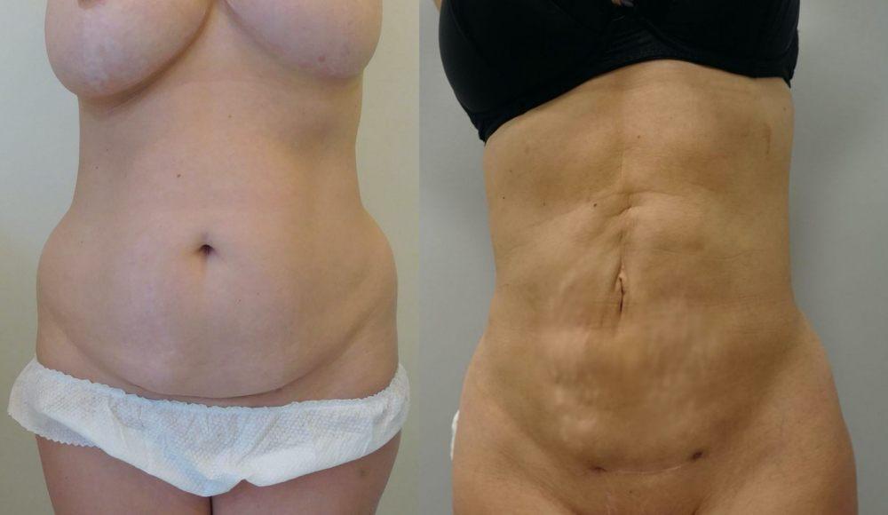 zdjecie-przed-po-zabieg-liposukcji-brzucha