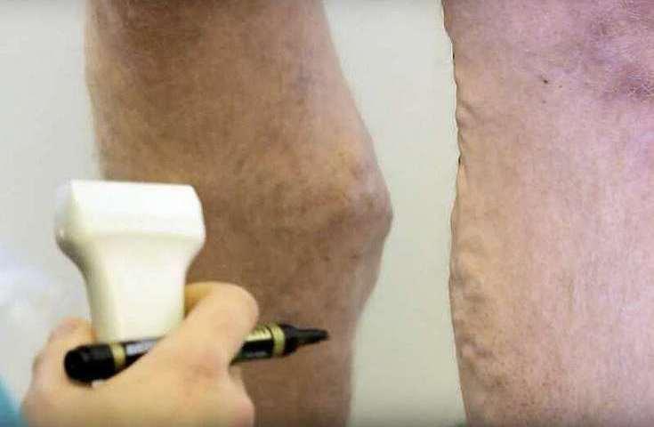 badanie zylakow konczyn dolnych