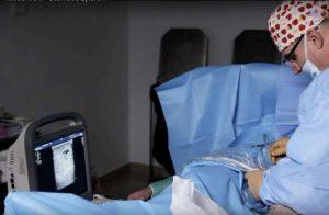 leczenie żylaków kończyn dolnych